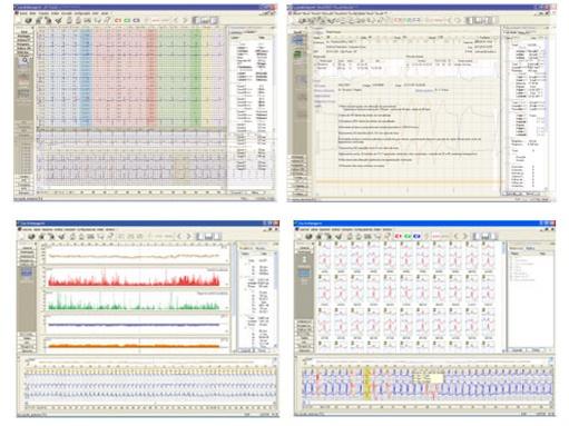 Foto de Sistema inteligente de análisis de Holter