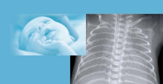 Foto de Soluciones para pediatría