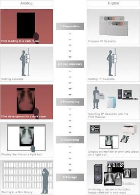 Foto de Sistemas de digitalización para radiología