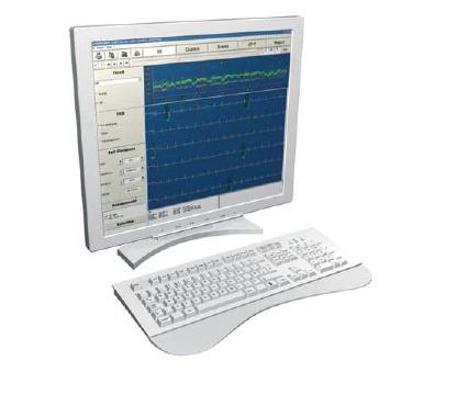 Foto de Software para examen Holter