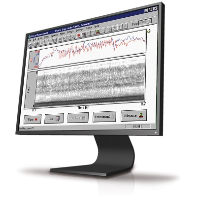 Foto de Sistema de análisis de voz
