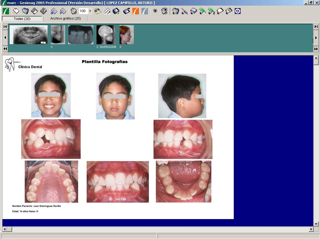 Foto de Software de tratamiento de imágenes