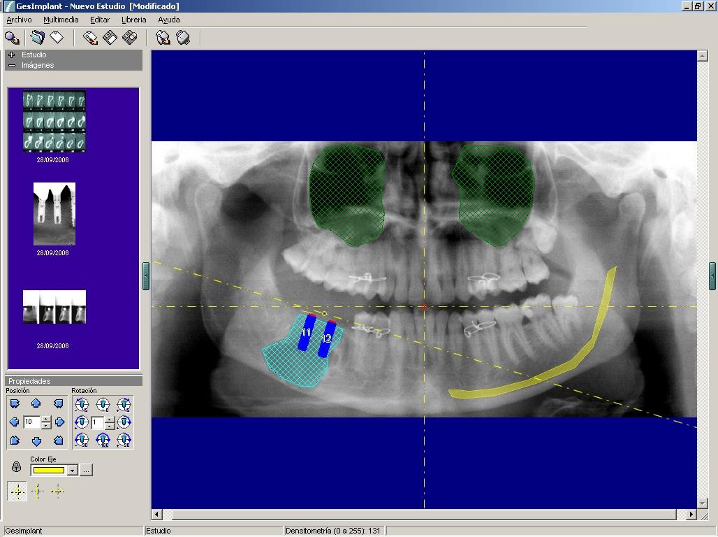 Foto de Software de comunicación tratamientos implantológicos