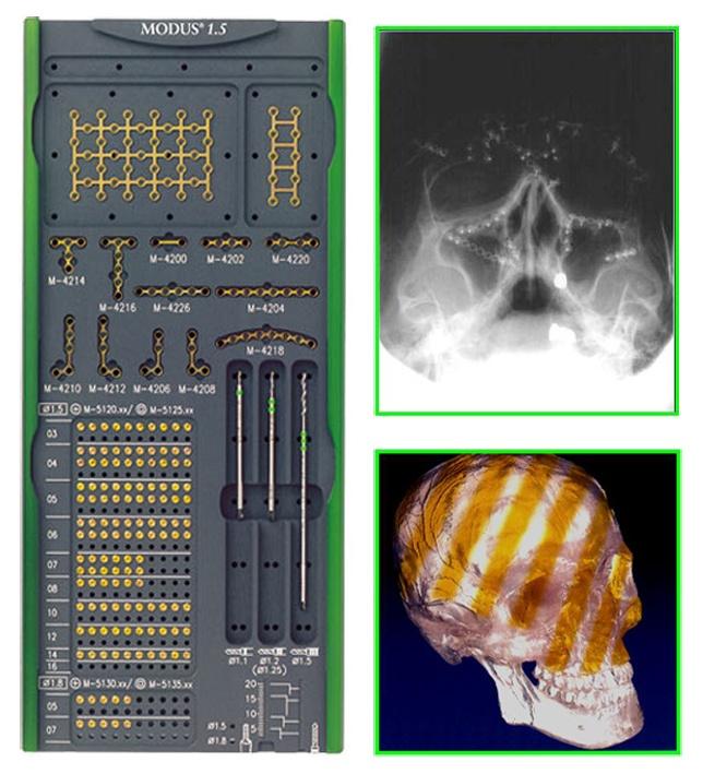 Foto de Sistemas de osteosíntesis
