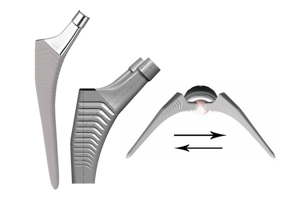 Foto de Prótesis primarias de cadera