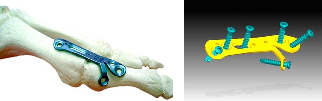 Foto de Placas de artrodesis