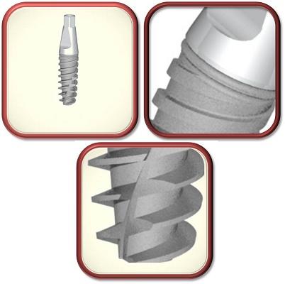 Foto de Implantes monobloque