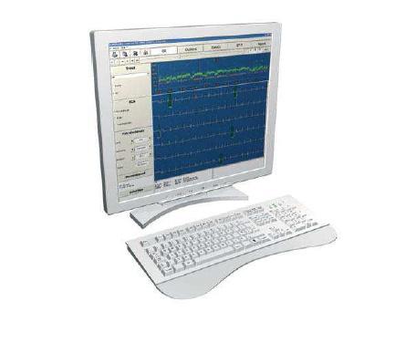 Foto de Software de procesamiento de ECG