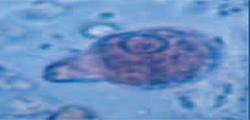 Foto de Análisis de imágenes biológicas